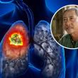 Đã có rất nhiều nghệ sĩ qua đời vì ung thư phổi: ai cũng cần hiểu biết về căn bệnh này